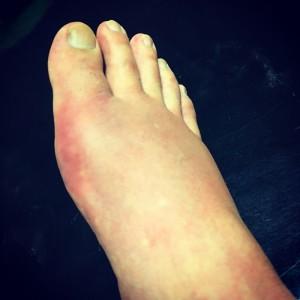 腫れ上がった足